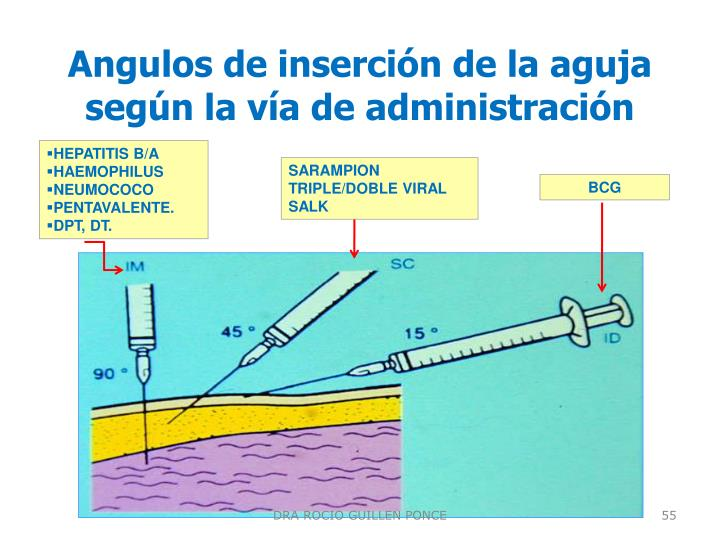 Angulos de inserción de la aguja según la vía de administración