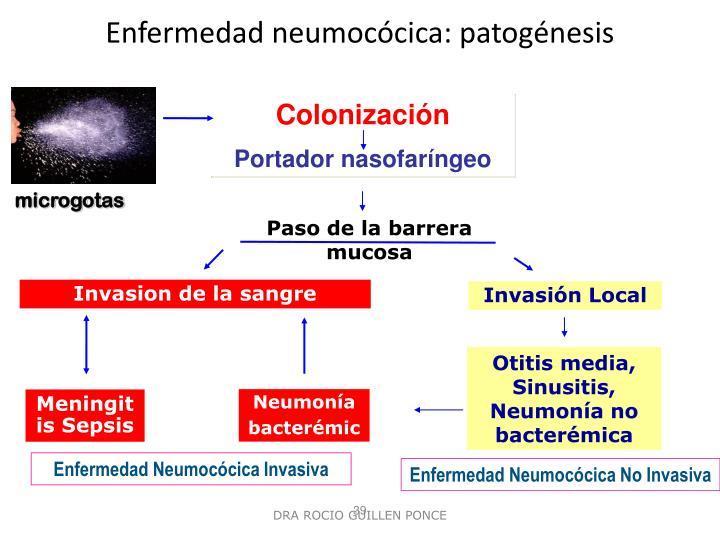 Enfermedad neumocócica: