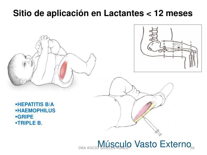 Sitio de aplicación en Lactantes < 12 meses