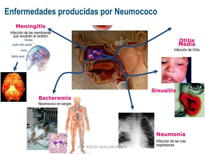 Enfermedades producidas por Neumococo