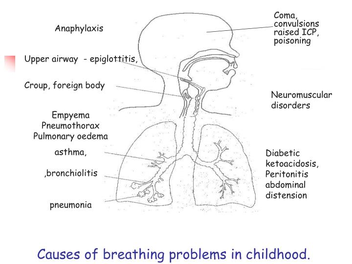 Causes of breathing problems in childhood.