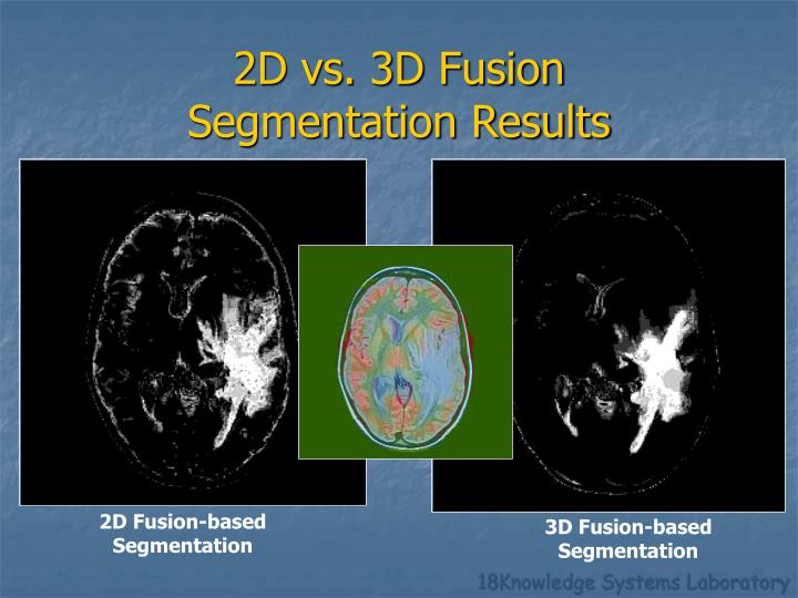 2D Fusion-based Segmentation