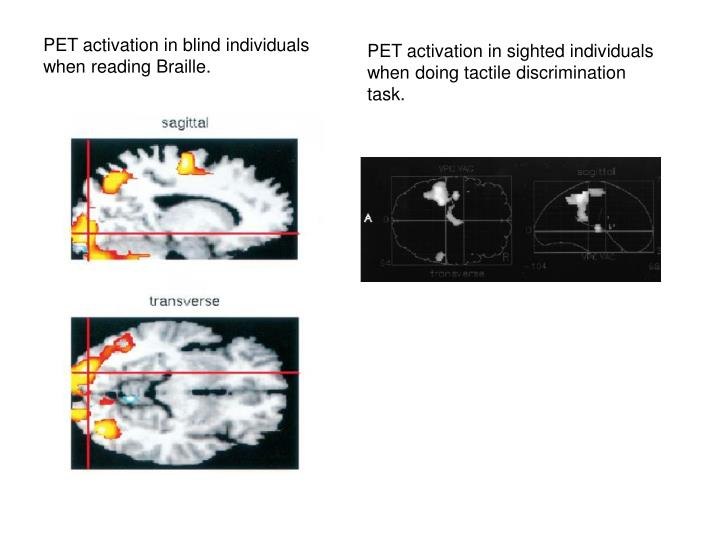 PET activation in blind individuals when reading Braille.