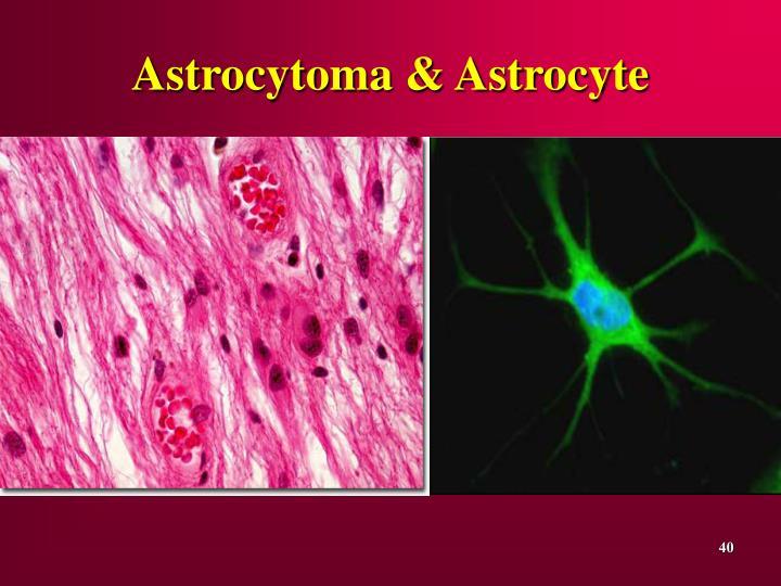Astrocytoma & Astrocyte