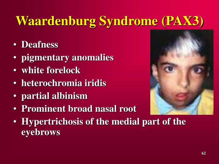 Waardenburg Syndrome
