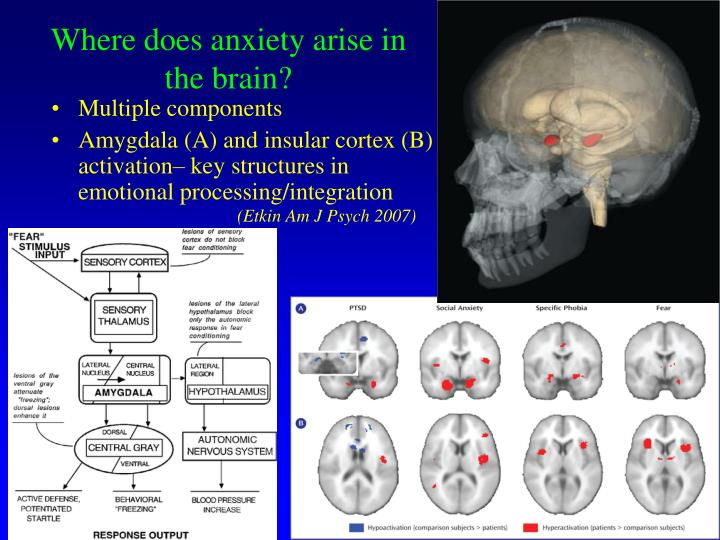 Where does anxiety arise in the brain?