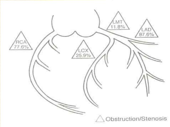 冠状动脉结构图