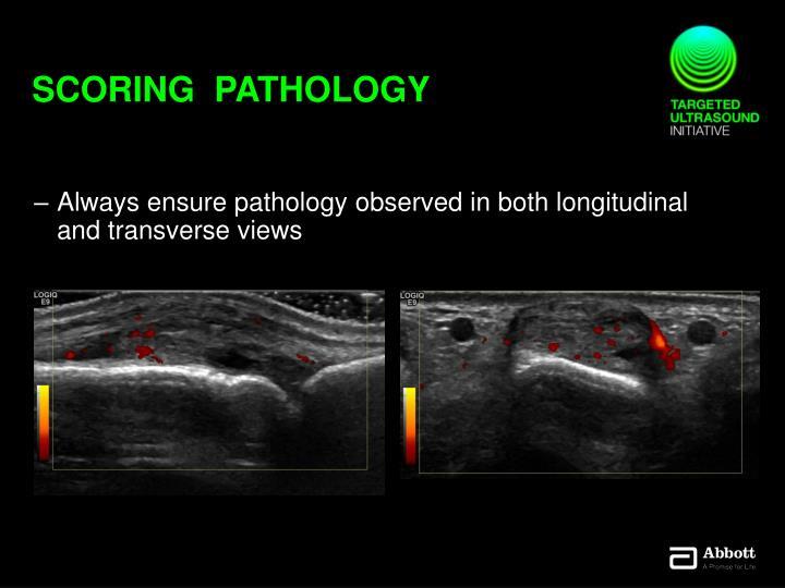 Scoring  pathology