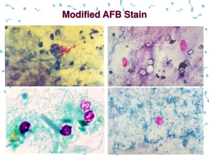 Modified AFB Stain
