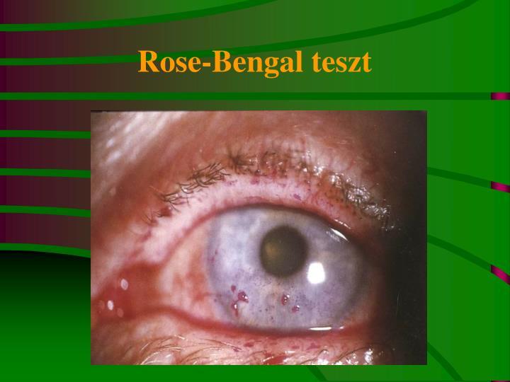Rose-Bengal teszt