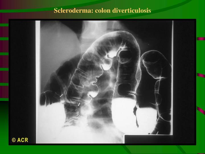 Scleroderma: