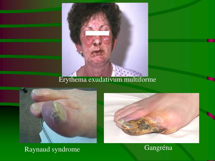 Erythema exudativum multiforme