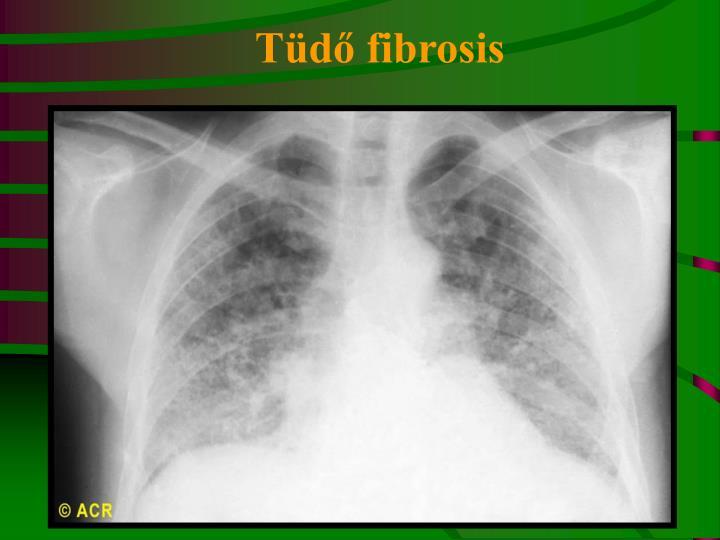 Tüdő fibrosis