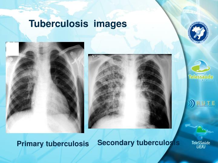 Tuberculosis  images