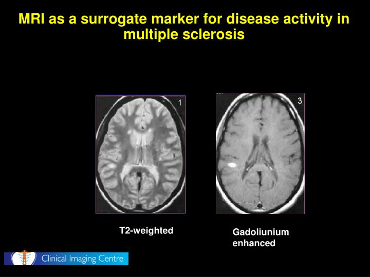 MRI as a surrogate marker for disease activity in multiple sclerosis