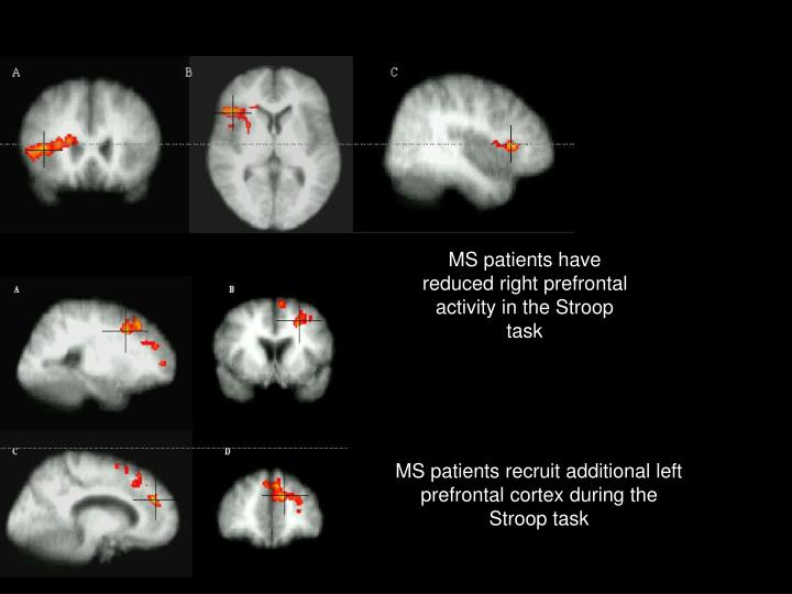 MS patients have reduced right prefrontal activity in the Stroop task