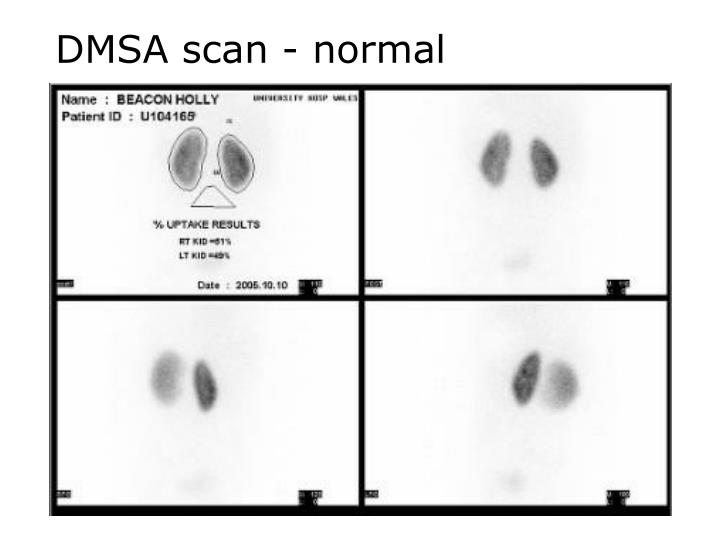 DMSA scan - normal