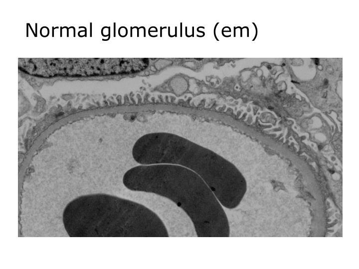 Normal glomerulus (em)