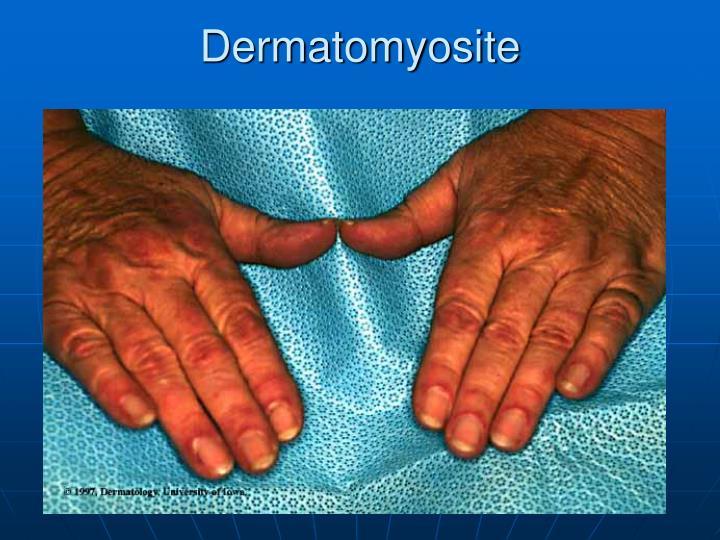 Dermatomyosite