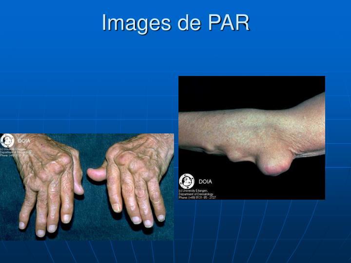 Images de PAR
