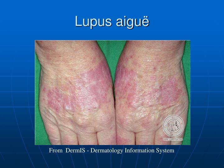 Lupus aiguë