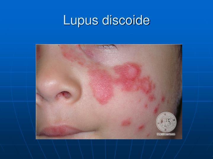 Lupus discoide