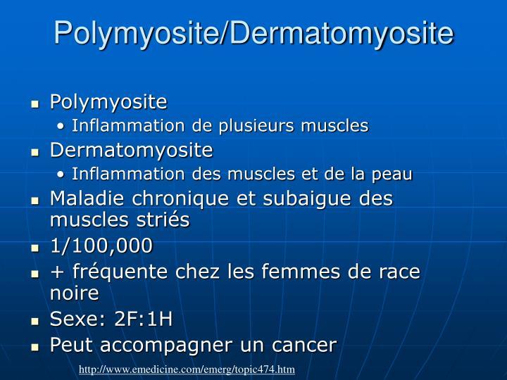 Polymyosite/Dermatomyosite