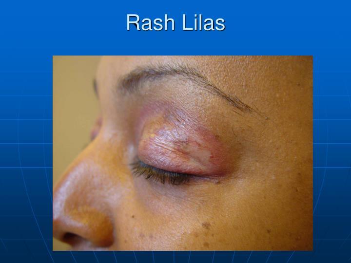 Rash Lilas