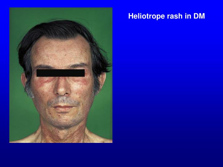 Heliotrope rash in DM