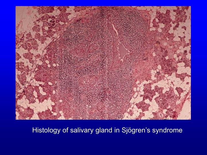 Histology of salivary gland in sj gren s syndrome