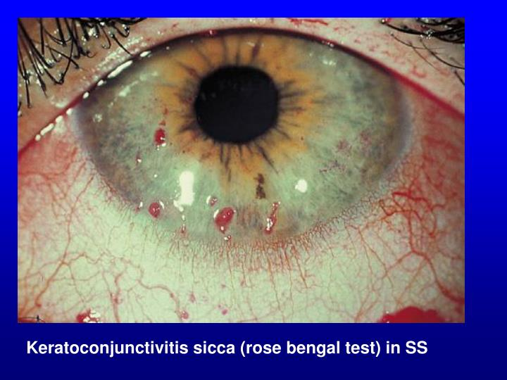 Keratoconjunctivitis sicca (rose bengal test) in SS