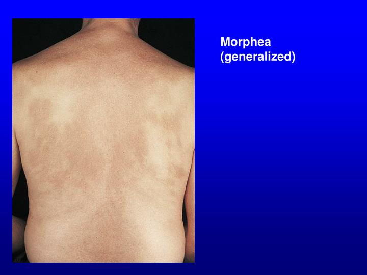 Morphea (generalized)
