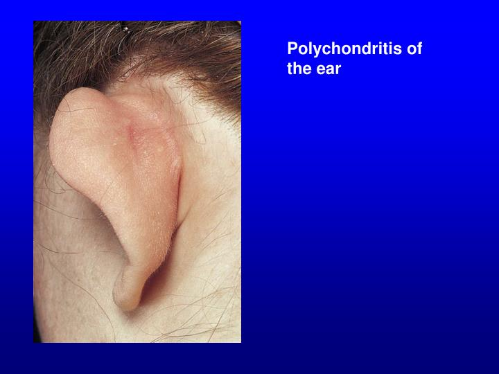 Polychondritis of