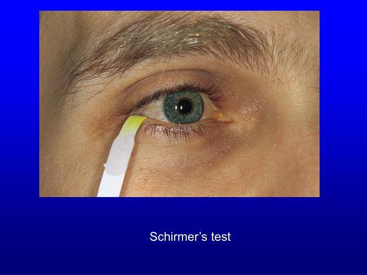 Schirmer's test