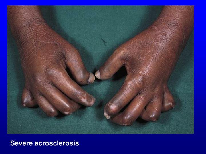 Severe acrosclerosis