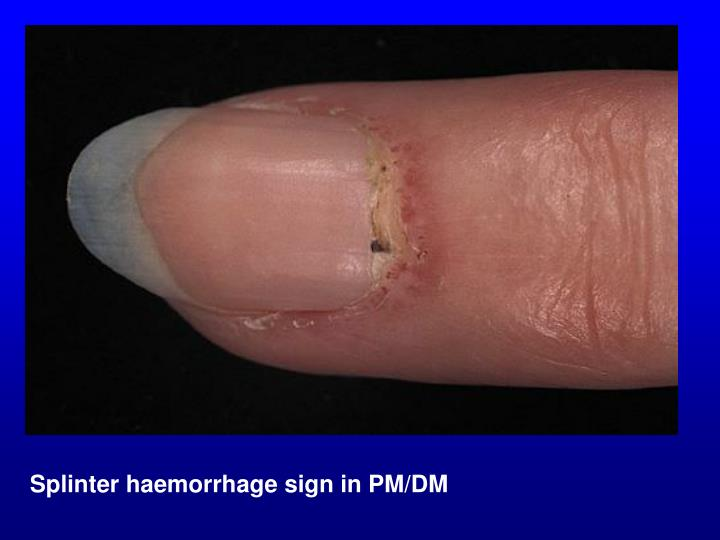 Splinter haemorrhage sign in PM/DM