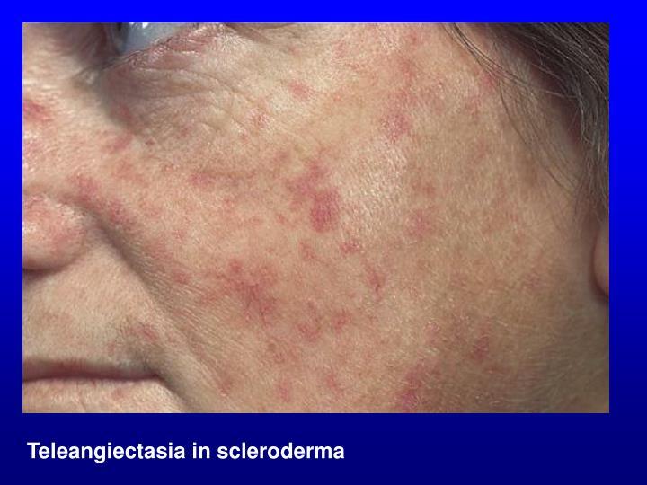 Teleangiectasia in scleroderma