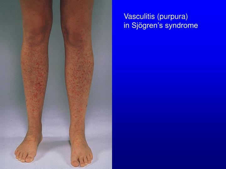 Vasculitis (purpura)
