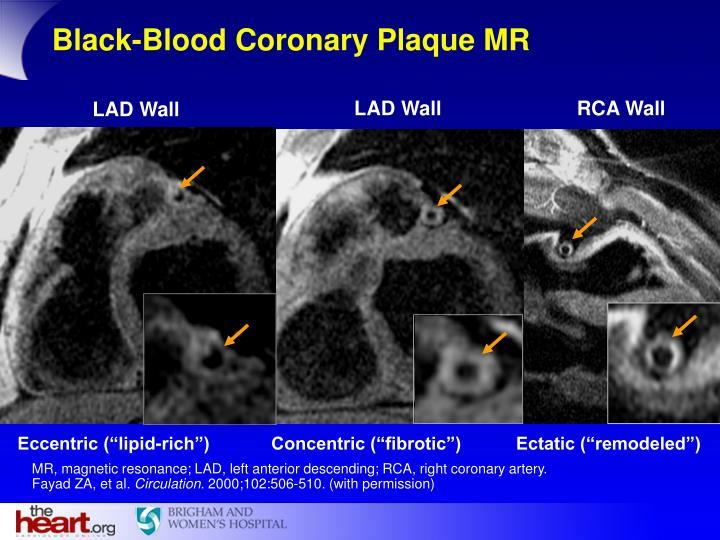 Black-Blood Coronary Plaque MR