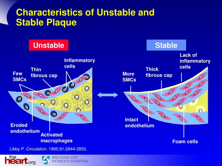 Characteristics of Unstable and