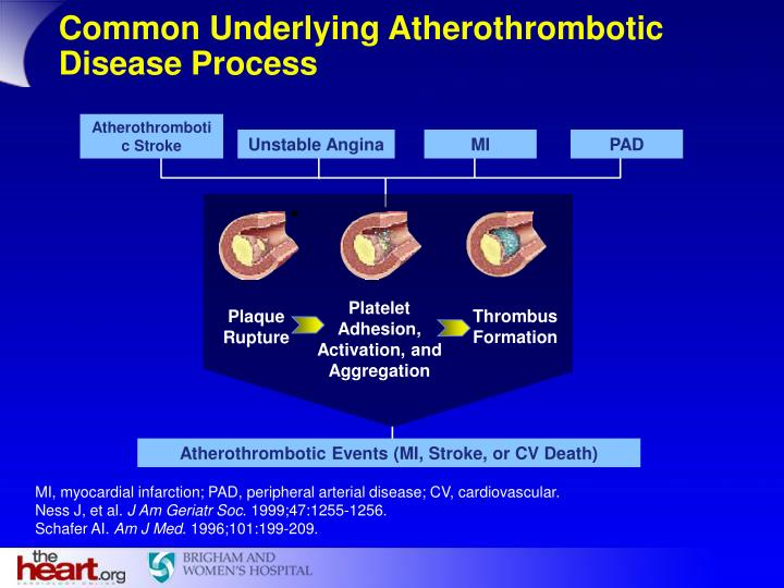 Common Underlying Atherothrombotic Disease Process