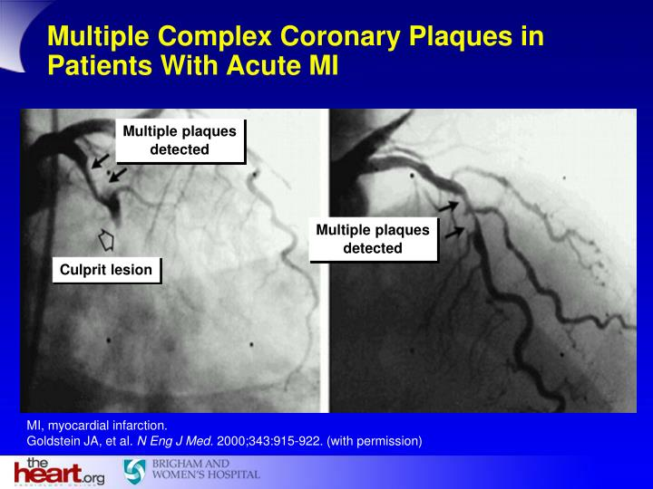 Multiple Complex Coronary Plaques in Patients With Acute MI
