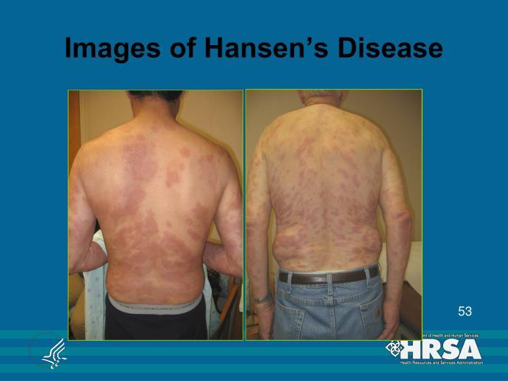 Images of Hansen's Disease