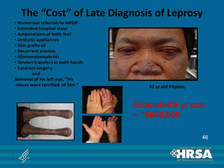 """The """"Cost"""" of Late Diagnosis of Leprosy"""