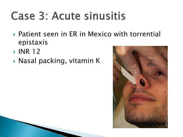 Case 3: Acute sinusitis