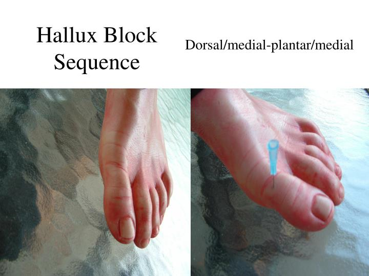 Hallux Block Sequence