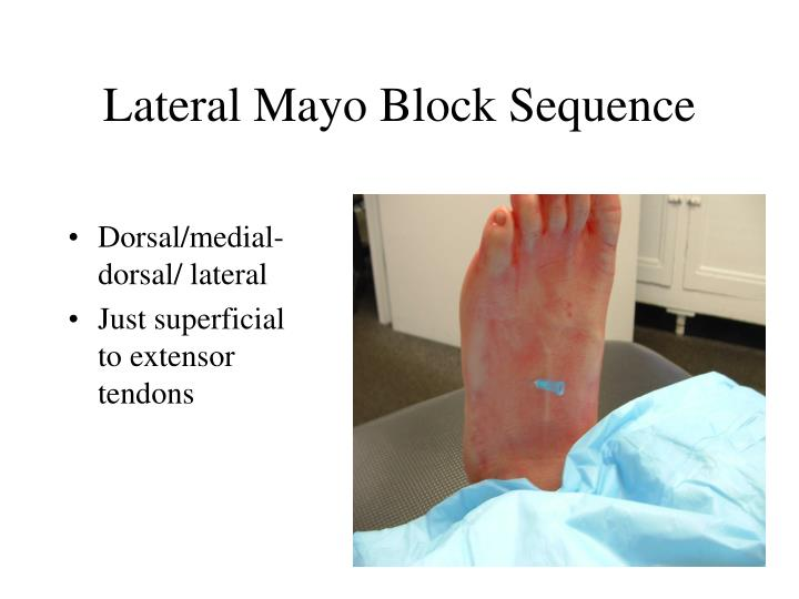 Lateral Mayo Block Sequence