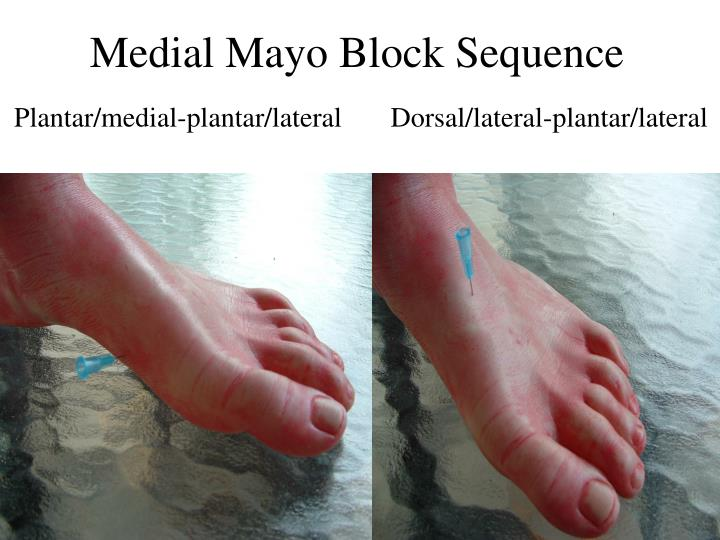 Medial Mayo Block Sequence