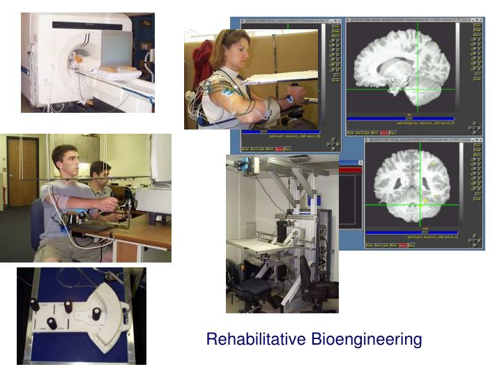 Rehabilitative Bioengineering