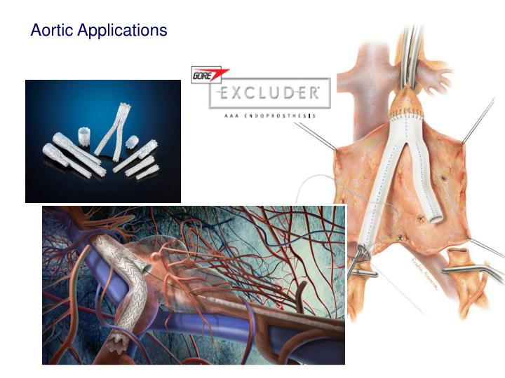 Aortic Applications